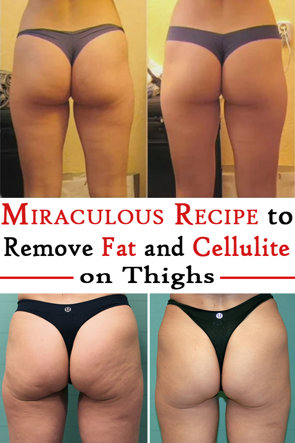 Miraculous Recipe to Remove Fat and Cellulite on Thighs